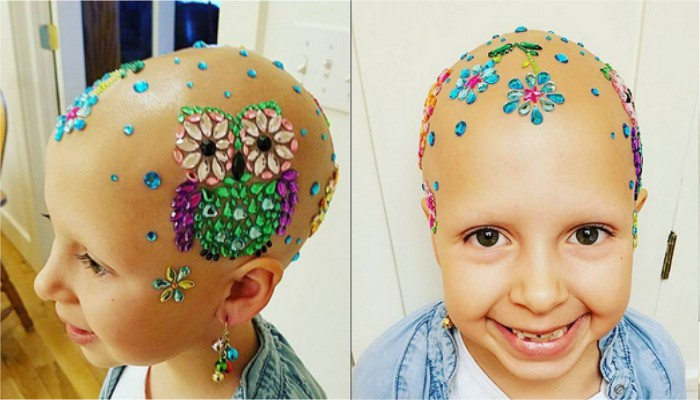 Children With Alopecia Day